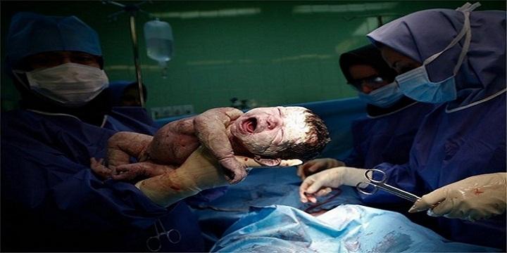 139406161717432296043744 - سزارین در هفته چندم بارداری انجام می شود؟